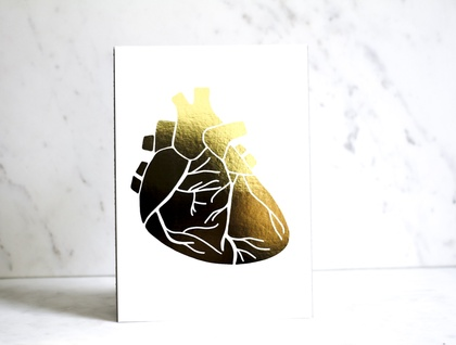 Heart of Gold Print - A4